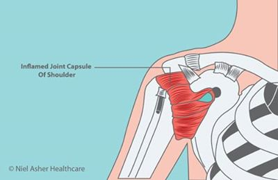 shoulder surgeon specialist doctor in Kolkata