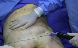 שאיבת שומן ללא ניתוח