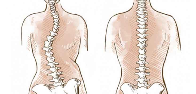 LA SCOLIOSI, il percorso terapeutico dalla diagnosi alla chirurgia