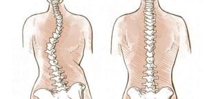 Read more about the article LA SCOLIOSI, il percorso terapeutico dalla diagnosi alla chirurgia