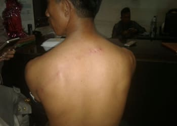 Zulkarnaen menunjukkan luka memar di tubuhnya karena dipukul sejumlah pria di Kos Jalan Maninjau Siantar.