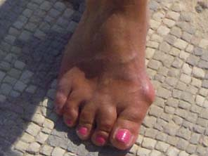 Bunions - Lightfoot Podiatry