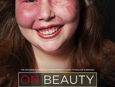 On Beauty, a Move to Include Screening