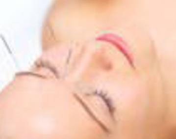 Newport Acupuncture
