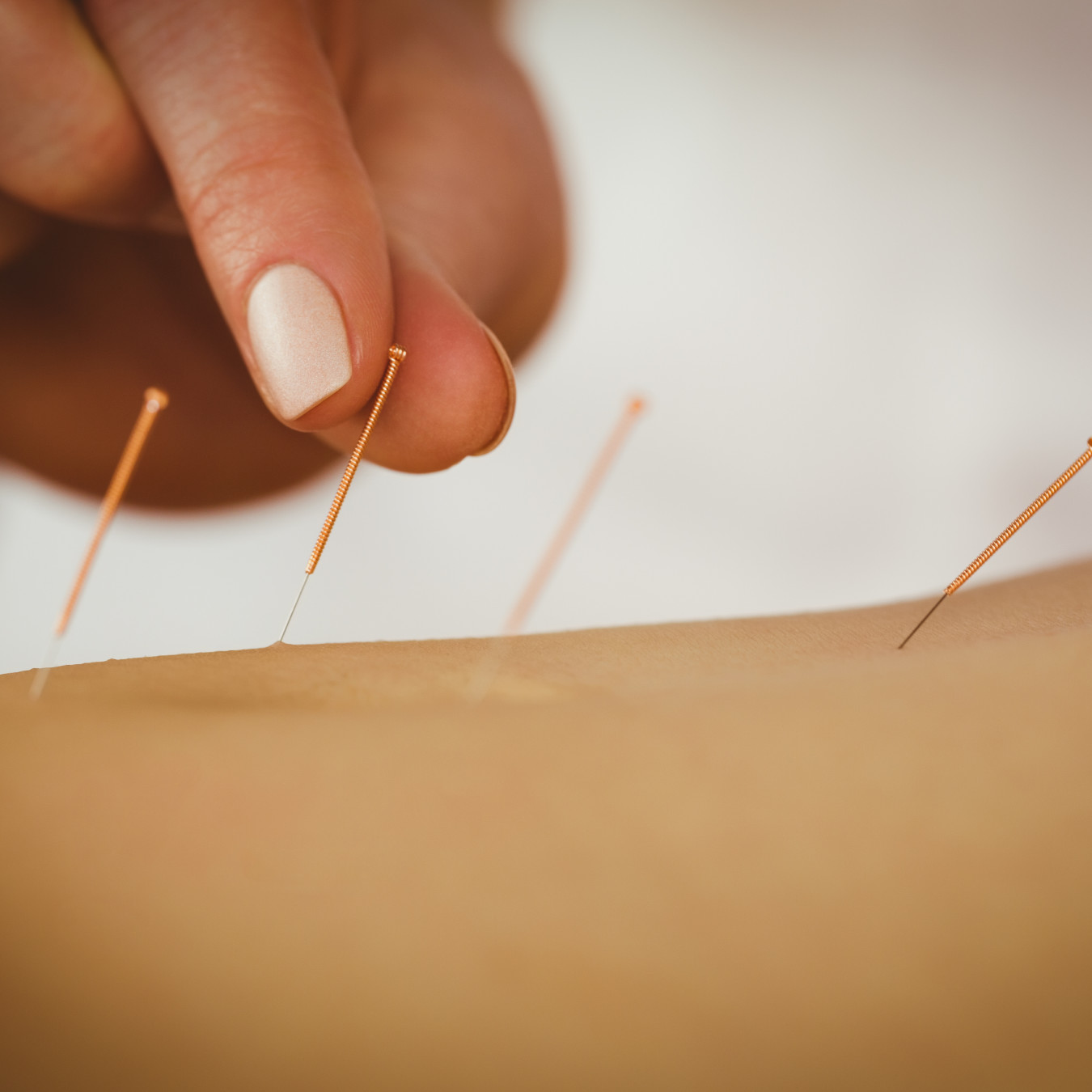 Acupuncture Needle stock