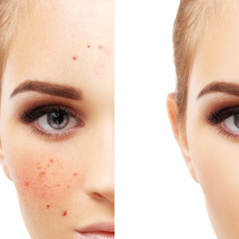 Understanding Acne: Causes, Types, and Treatments