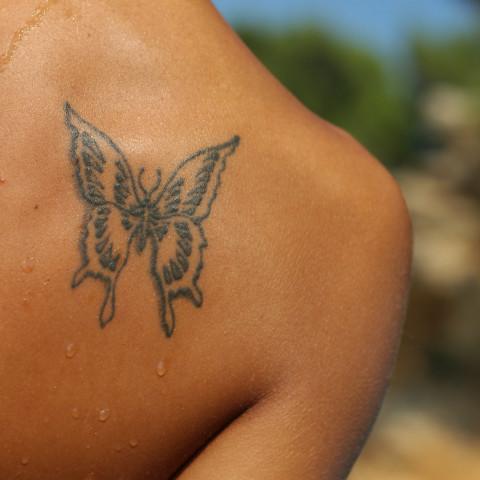 MedLite Laser Tattoo Removal