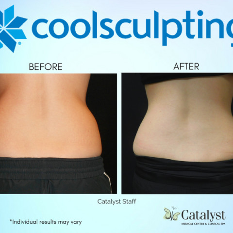 CoolSculpting - Lose it and Love it!