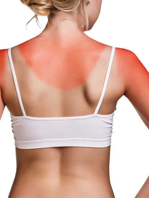 What To Do About A Nasty Sunburn