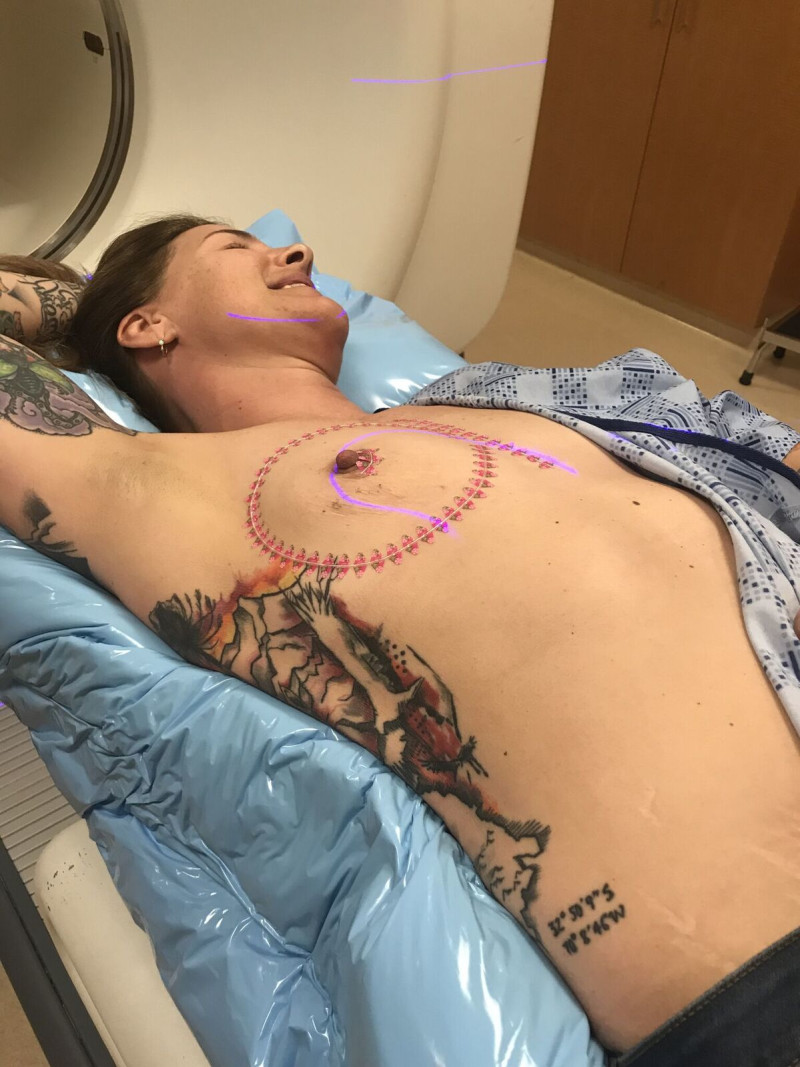 Calling All Boobie Doctors: Wanna solve a cancer conundrum with me?