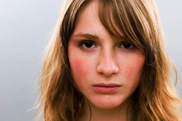 yüz kızarıklığı nasıl geçer , yüz kızarıklığına doğal çözümler