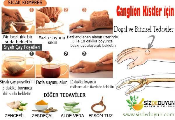 Ganglion kisti tedavisi