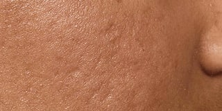 Acne scars - after treatment