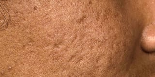 Acne scars - before treatment
