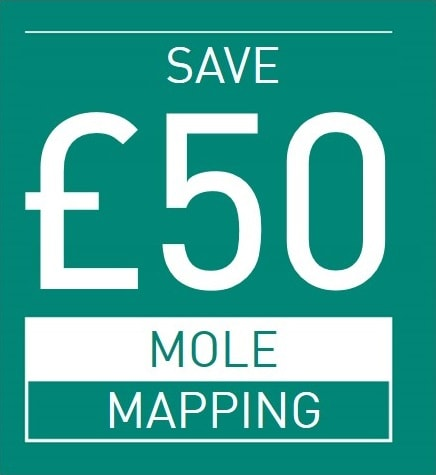 £50 OFF MOLE MAPPING