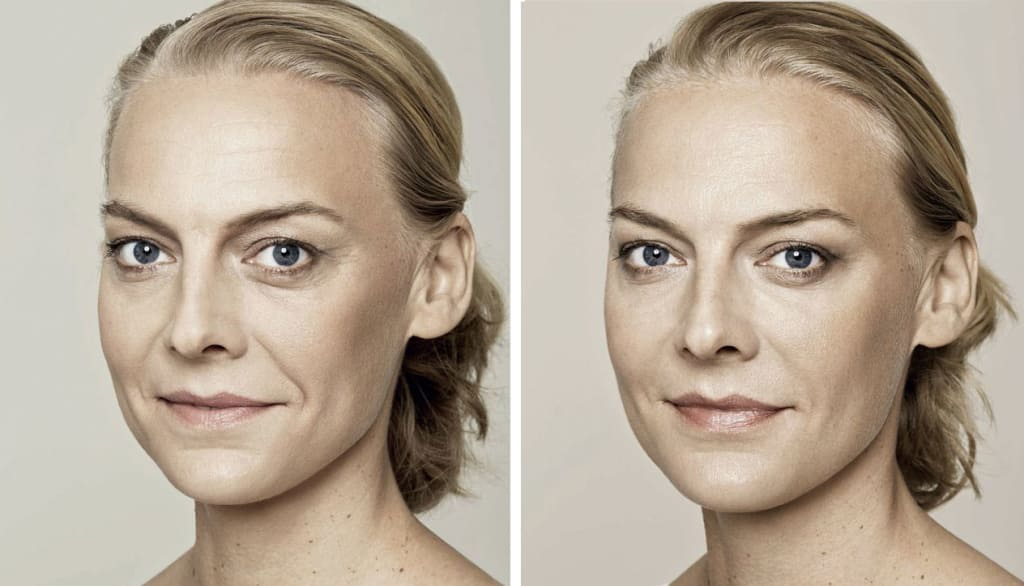 Before and after Restylane Skin Boosters