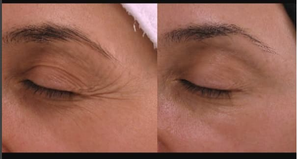 Before and after Botox for crows feet