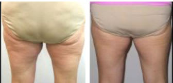 Before and after thermi250 thermismooth body skin tightening for cellulite reduction