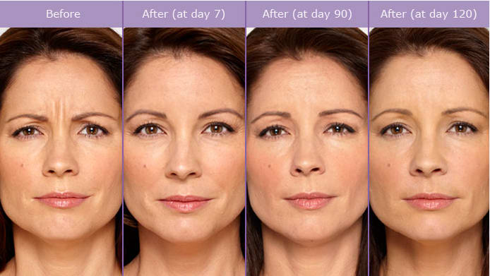 before-after-wrinkle-treatment