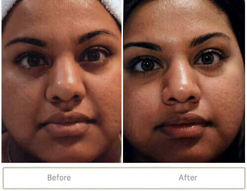 Fraxel skin resurfacing treatment for acne scars on female patient