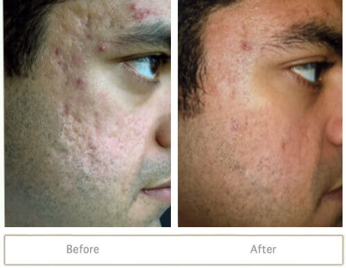 Male who had acne scarring treatment before and after fraxel skin resurfacing.