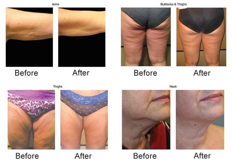 before and after venus freeze body contouring
