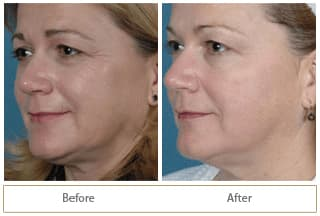 fotofacial-before-after1