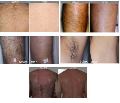 before and after photos of elos laser hair removal