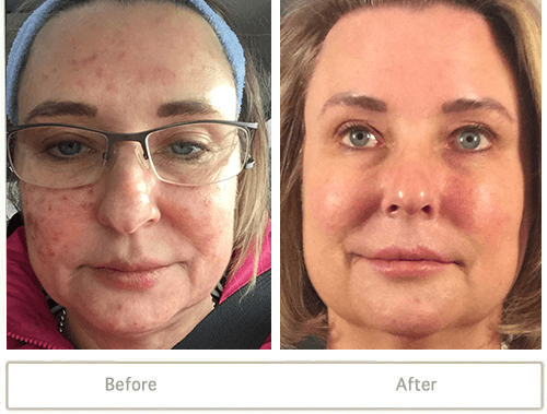 Female patient with bad acne before and clear skin after acne treatment.