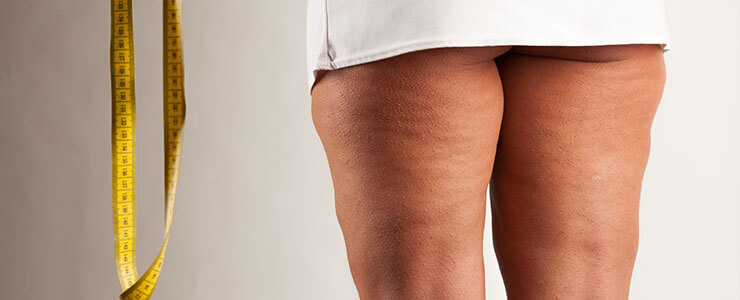 Woman with cellulite on upper thighs.