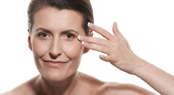 Woman showing crows feet before getting treated by Botox.