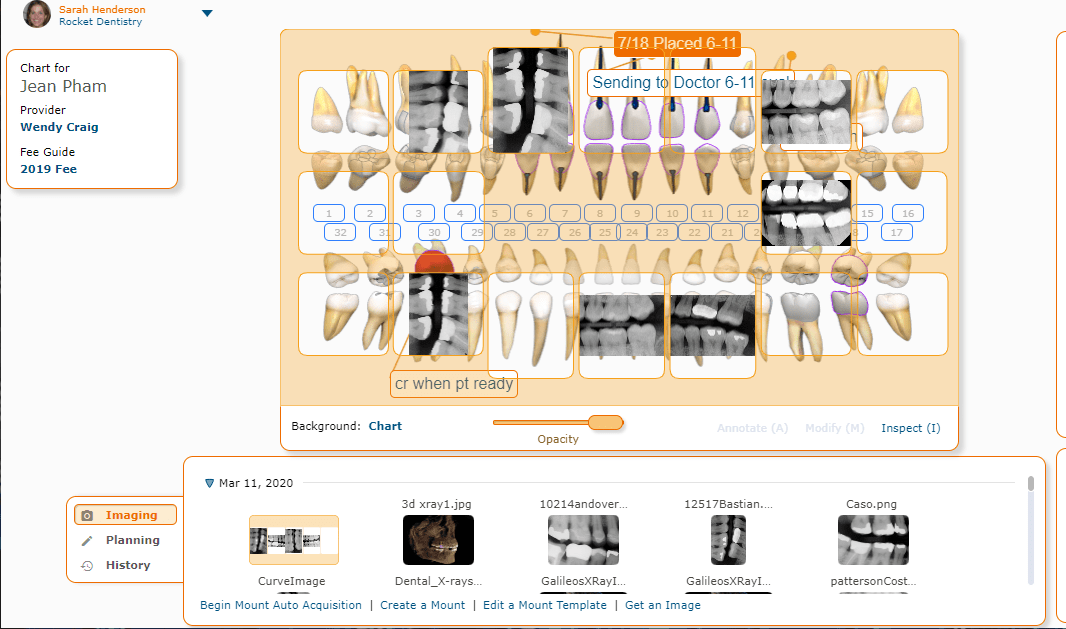 Curve Dental Imaging Chart