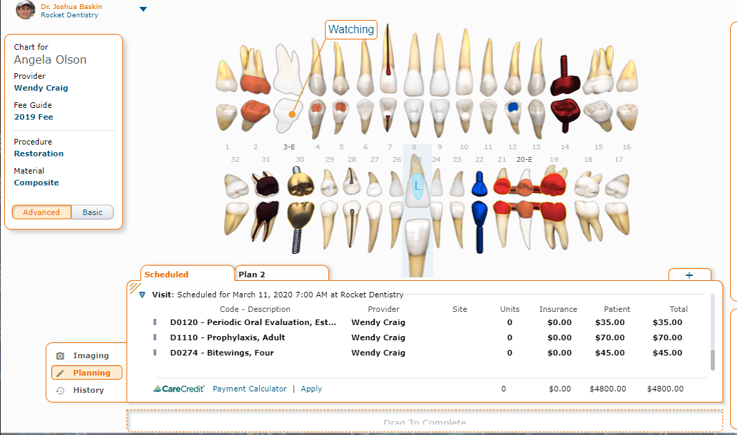 Curve Dental Patient Chart
