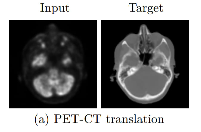 Conversion of PET Scan into synthetic CT Scan with GANs