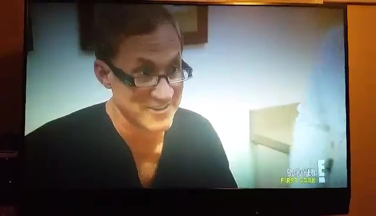 Botched Video Season 3 on E Channel.mp4