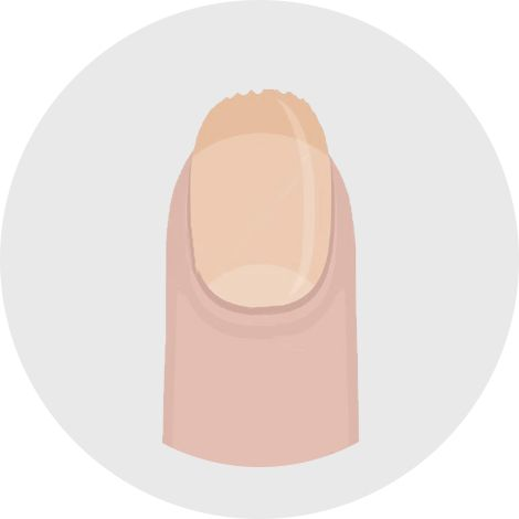 Brittle or spoon-shaped nails