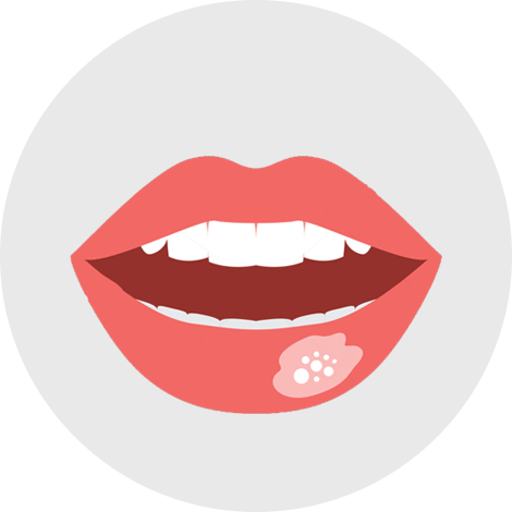 Cracks & ulcers in mouth