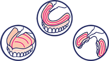 Apply adhesive in thin continuous lines as shown or less. You might need a few tries to find out the ideal amount for your individual denture.