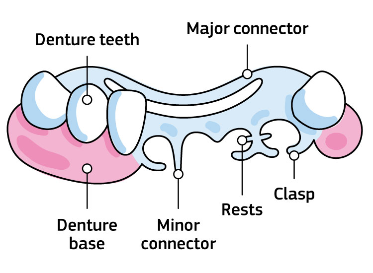 An infographic showing the Parts of partial removable dentures: denture teeth, major connector, denture base, minor connector, rests, clasp.
