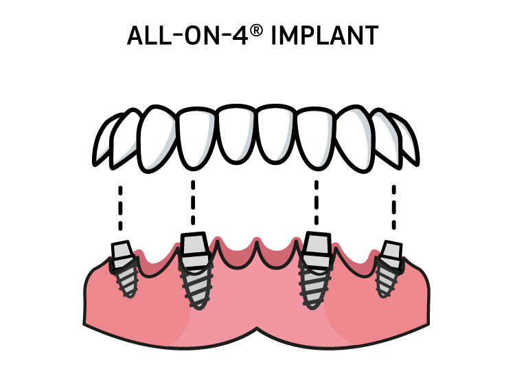 Types of Dental Implants Anchor 3 Image