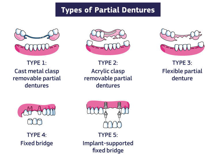 An infographic showing the types of partial dentures: Type 1: Cast metal clasp removable partial dentures Type 2: Acrylic clasp removable partial dentures Type 3: Flexible partial denture Type 4: Fixed bridge Type 5: Implant-supported fixed bridge