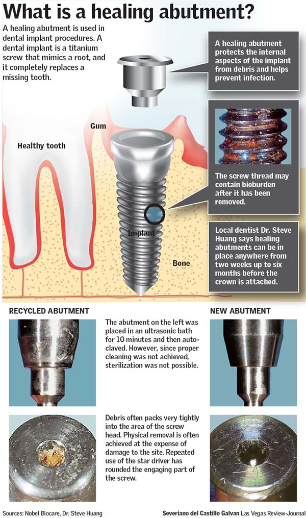 What is a healing abutment