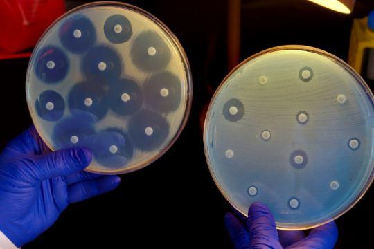 Resistant bacteria spreading