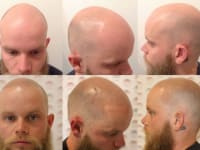 Scalp Micropigmentation Before And After Client 3