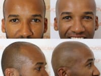Scalp Micropigmentation Before And After Client 4