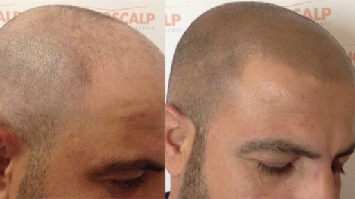 Scalp Micropigmentation Cost
