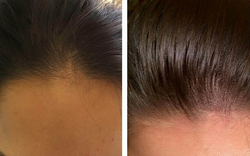 The Treatment for Women Hair Loss