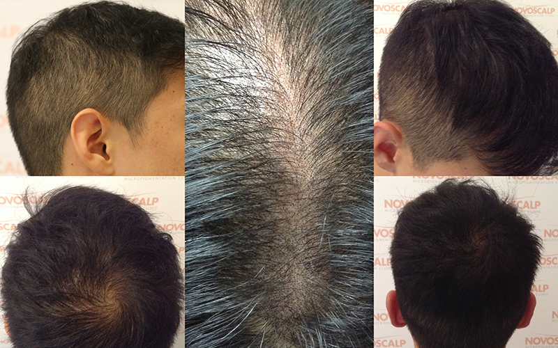 SMP Treatment for Hair Density Look