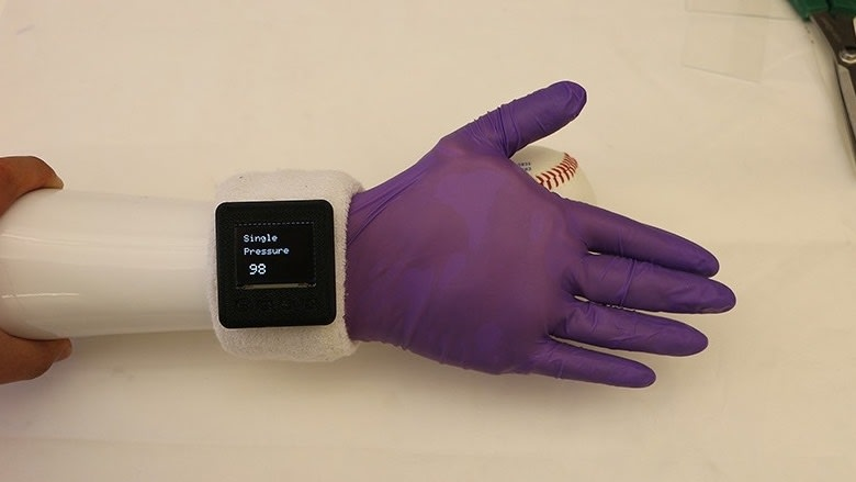 Electronic Glove Offers Humanlike Features for Prosthetic Hands