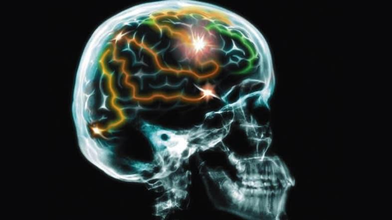 Smart Brain Stimulators: Next-Generation Parkinson's Disease Therapy